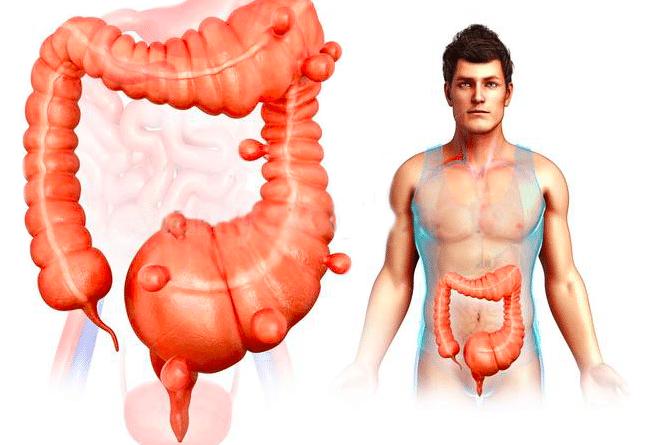 divertikulose divertikulitis divertikler på tyktarm udposninger på tarmen diverticulose divertikulitis endoskopi